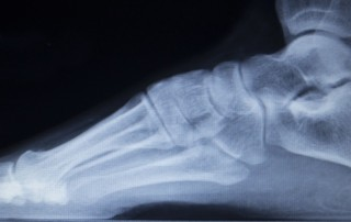 X-ray orthopedic medical CAT scan of painful foot injury in traumatology hospital clinic showing load weight bearing.